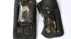 Samsung Smartphone explodiert - So sieht das Bein der jungen Frau aus