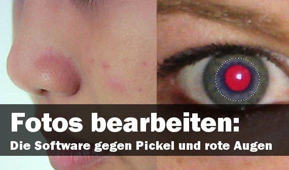 Fotos bearbeiten: Die richtige Software gegen Pickel und rote Augen