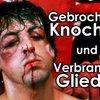 Verbrannt, Gebrochen, Geschnitten: 6 krasse Verletzungen am Filmset