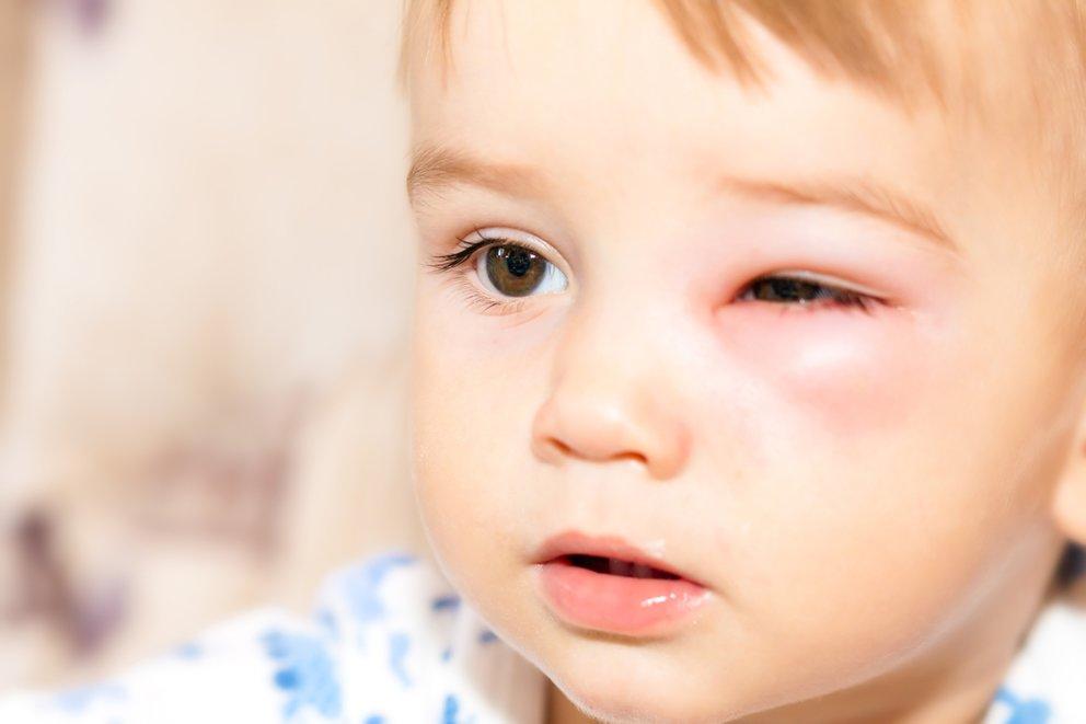 Kind mit gefährlichem Wespenstich