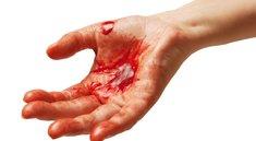 Blutung stoppen: Maßnahmen, um eine leichte bis starke Blutung aufzuhalten