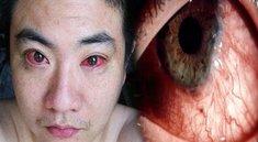 Augenkrebs durch Smartphones: Meldung auf Facebook - Was ist dran?