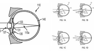 Patentantrag: Google möchte smarte Linse direkt ins Auge verpflanzen