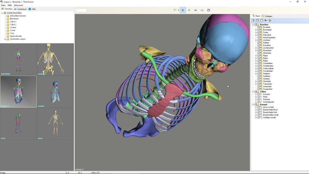 BoneLab-3D