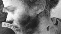 Explodierter Kopfhörer: Apple weist Schuld von sich [Update]
