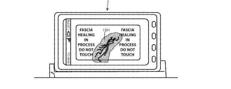 motorola patent so reparieren sich smartphones bei display br chen selbst giga. Black Bedroom Furniture Sets. Home Design Ideas