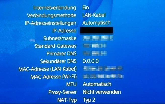 notiert euch hier die ip adresse die ip benotigt ihr um die einstellungen am router zu konfigurieren und damit den nat typ zu andern - fortnite ps4 verbindungsprobleme