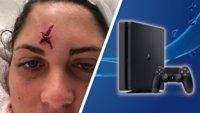 Frau bekommt Golfball gegen Kopf und bekommt PS4 als Entschädigung
