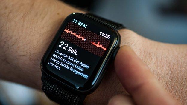 Neue Funktion für die Apple Watch in Deutschland freigeschaltet: So erstellt man ein EKG