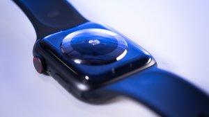 Apple Watch: Alte Armbänder nicht mehr kompatibel? Das steckt dahinter