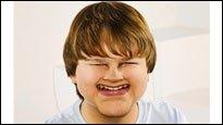 Stars mal anders - Photoshop-Lektion Nr. 1: Verunstalte das Gesicht einer Person